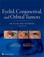 Image of the book cover for 'Eyelid, Conjunctival, and Orbital Tumors'